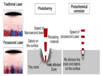 Tips You Should Know About The Picosure Laser