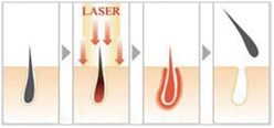 Three -Wavelength Diode Laser Hair remove